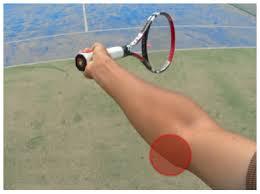 フォアハンドテニス肘4