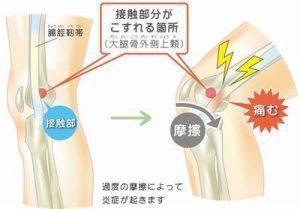 腸脛靭帯炎12