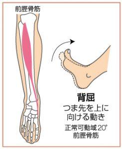 足関節捻挫2