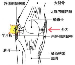 外側側副靱帯損傷