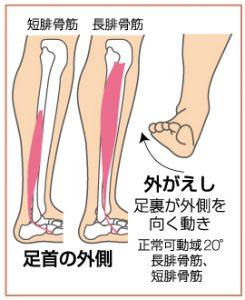 足関節捻挫4