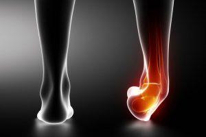 足関節捻挫6