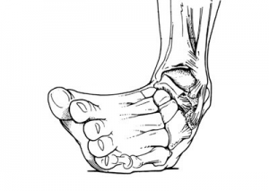足関節.4