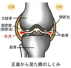 半月板症状