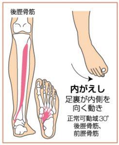 足関節捻挫3