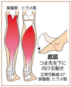 足関節捻挫1
