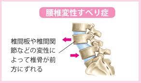 腰椎分離すべり症10