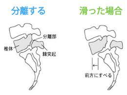 腰椎分離すべり症.3