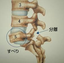 腰椎分離すべり症5