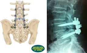 腰椎分離すべり症22