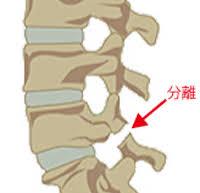 腰椎分離すべり症14