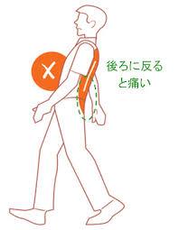 腰椎分離すべり症18