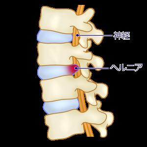 椎間板の一部が線維輪を破り突出した状態