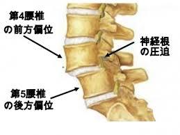 脊椎変性すべり症1