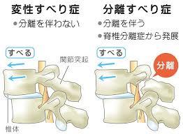 脊椎すべり症3