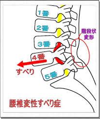 脊椎変性すべり症