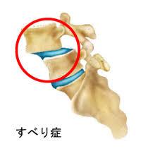 脊椎すべり症