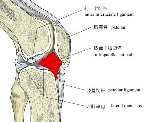 Hoffa病(膝蓋下脂肪体炎)2