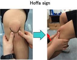 Hoffa sign