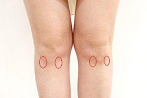 Hoffa病(膝蓋下脂肪体炎)1
