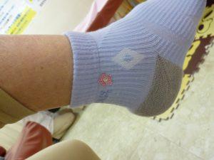 踵の痛み 経過報告